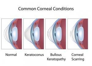 Common Cornel Conditions
