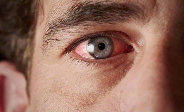 גבר עם עין ירוקה הסובל מיובש בעיניים