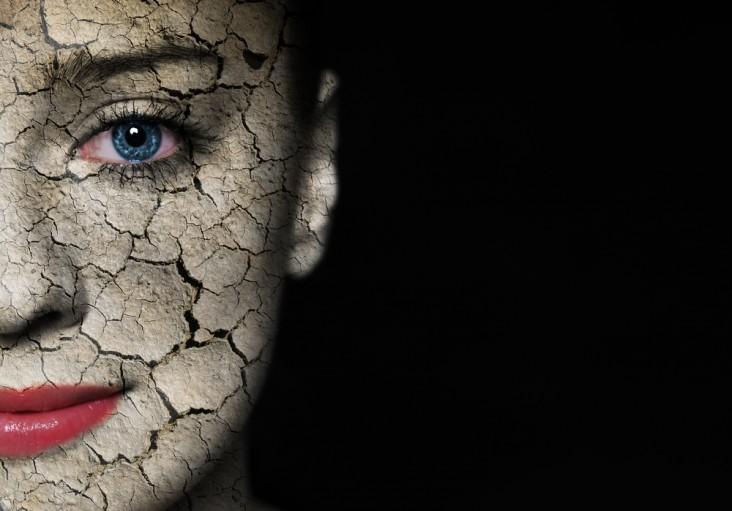 אישה עם פנים יבשות ועין כחולה