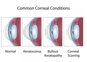 Common Cornel Conditions