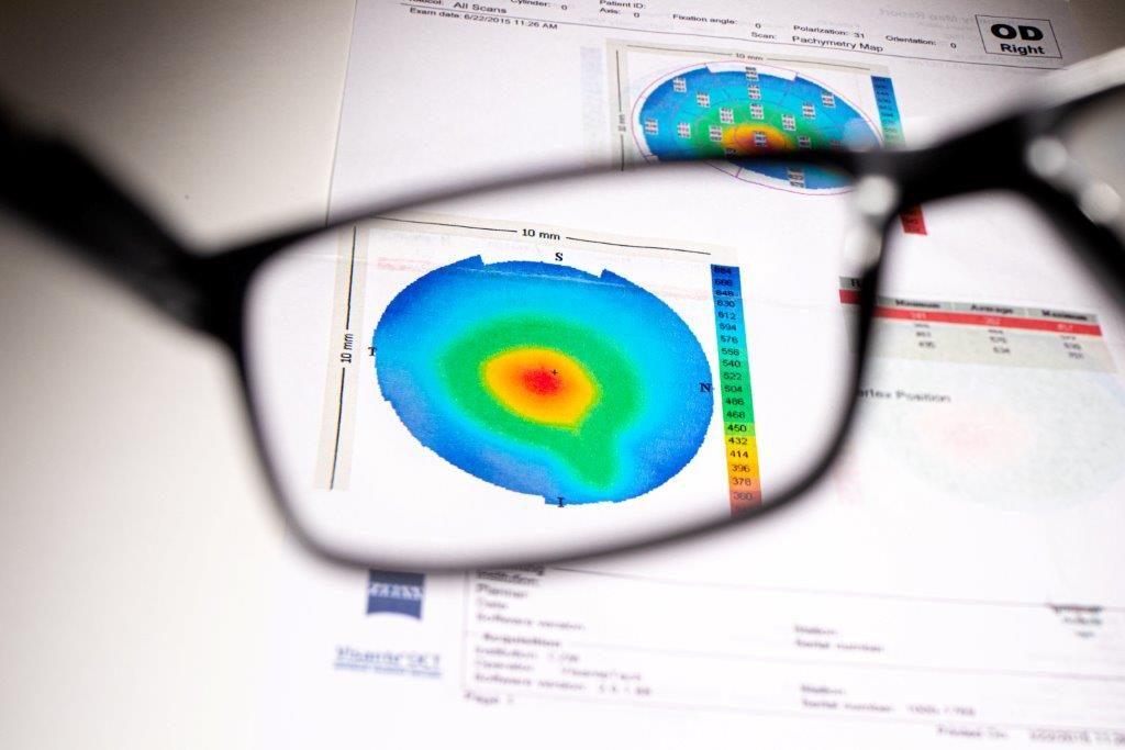 משקפיים לחולי קרטוקונוס